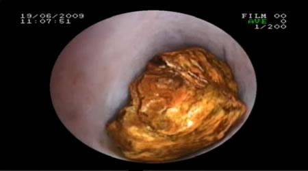 肝胆微创碎石术