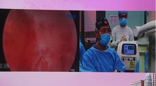 珠江医院林刘春晓教授 前列腺增生治疗术 前列腺增生剜除术