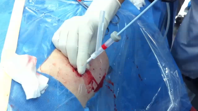 局麻经皮肾钬激光碎石